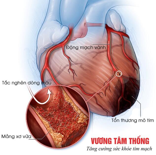 Nhồi máu cơ tim - Biến chứng nguy hiểm của bệnh mạch vành